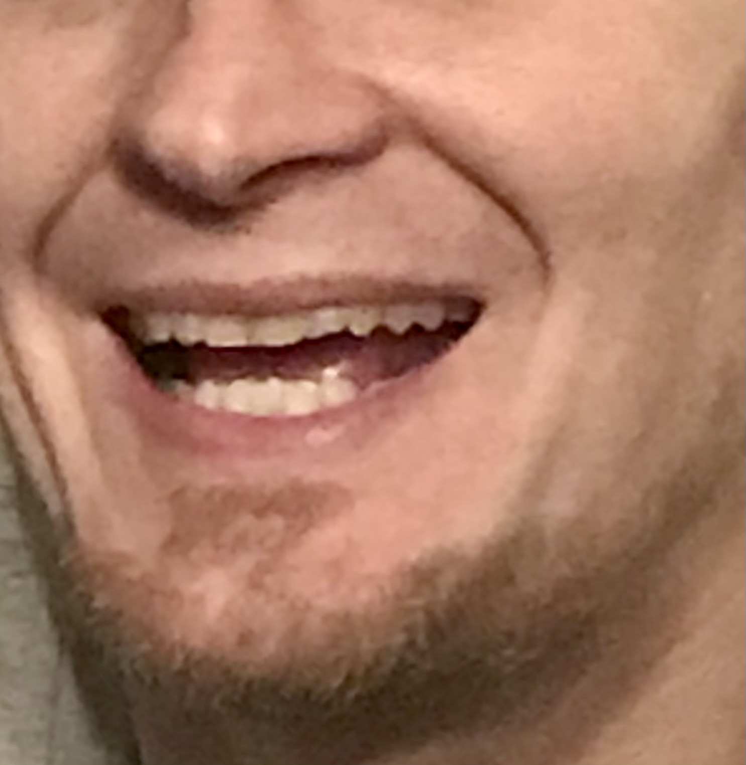 close up shot of justin's teeth showing how he has fixed his missing front tooth